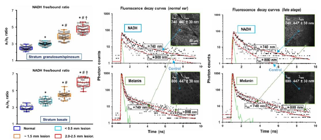 超快荧光寿命成像应用于皮肤癌早期检测